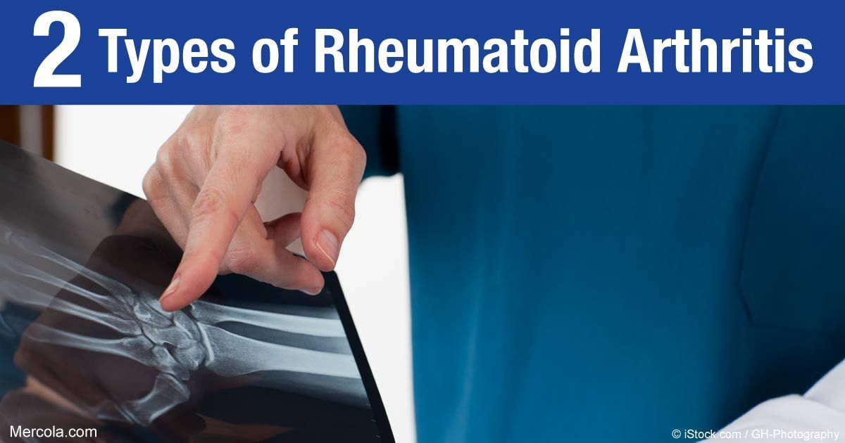 Are There Different Types Of Rheumatoid Arthritis